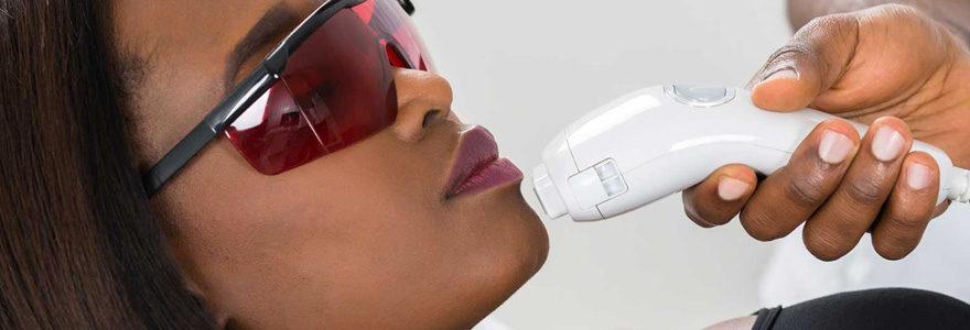 Épilation laser pour peau noire